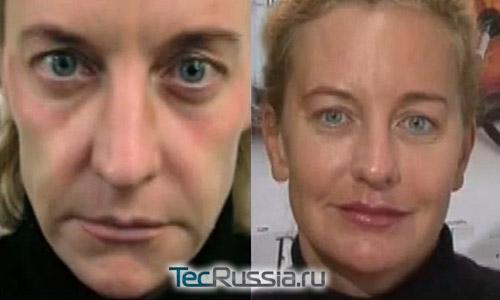 Реплери - фото до и после