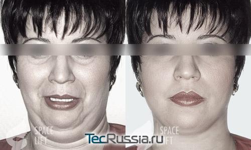 Спейслифтинг - фото до и после