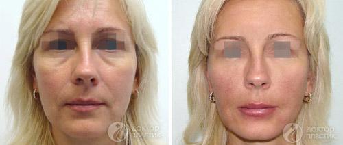 Фото до и после процедуры Софтлифтинг