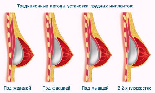 Состав кремов для увеличения бюста