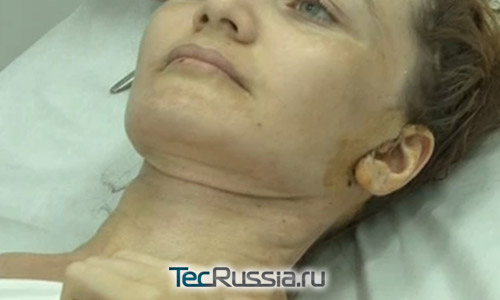 Лицо и шея Аси после пластической операции