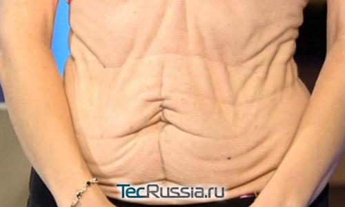 Состояние кожи на животе у Аси, до операции
