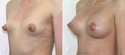 Результат увеличения груди с одновременной коррекцией ареол