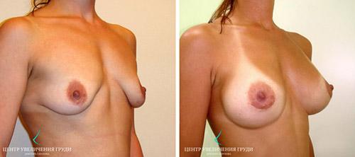 Эффект коррекции птоза без мастопексии