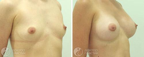 Увеличение груди, анатомические импланты – фото