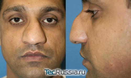 деформация носа после пластики