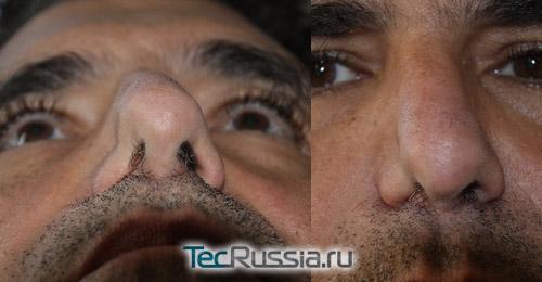 Перфорация носовой перегородки после неудачной ринопластики