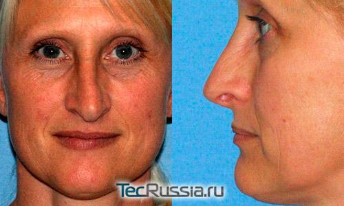 Деформация носа после – осложнение после неудачной ринопластики