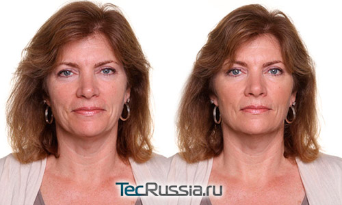Фото до и после озонотерапии по лицу