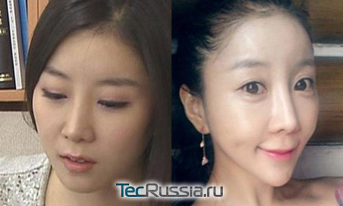 Пытаясь соответствовать стандартам красоты, девушка изуродовала себе лицо