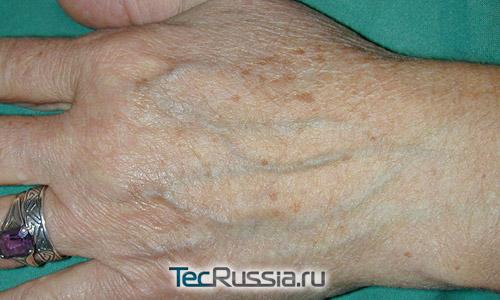 Морщины на руках как убрать - 1559d