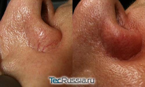 Лечение купероза – фото до и после