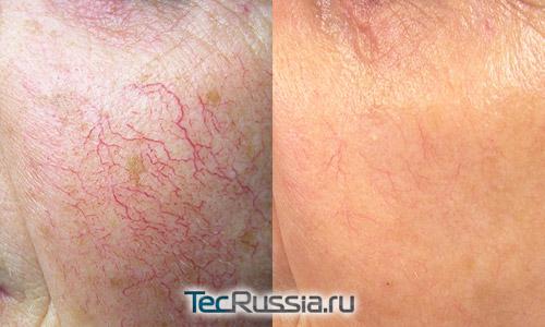 фото до и после лазерной терапии купероза