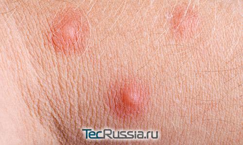 аллергия на груди у женщин