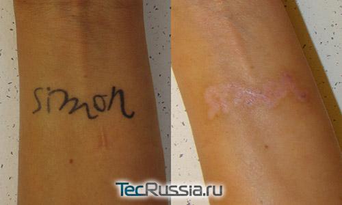 До и после лазерного удаления татуировки