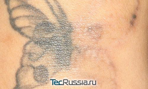 Фото татуировки, на правой части которой проведена процедура лазерного удаления