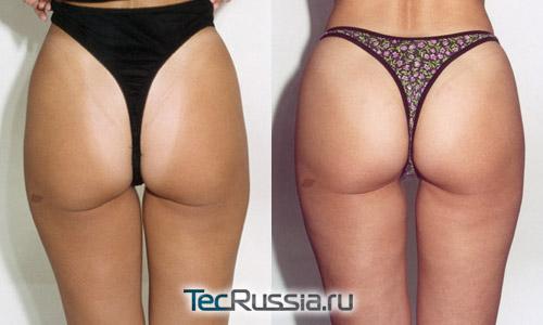 Фото до и после хирургической (операционной) подтяжки ягодиц