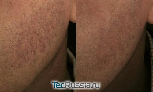 Фото до и после удаления лопнувшего сосуда