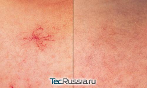Фото до и после лечения лопнувшего сосуда