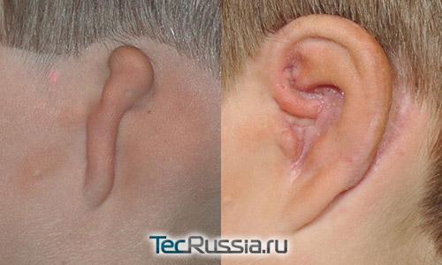 фото до и после реконструкции уха при микротии