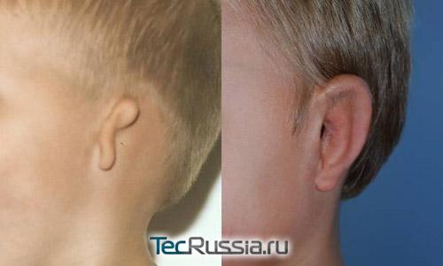 микротия – фото до и после