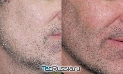 фото до и после пересадки бороды