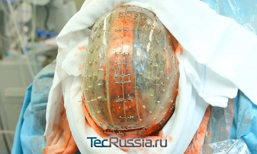 Девушке пересадили череп, напечатанный на 3D-принетре