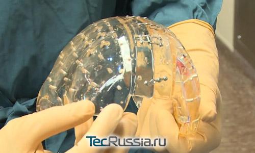Имплант черепной коробки, напечатанный на 3D-принетре