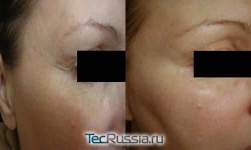 Фото до и после инъекций Meso-Wharton P199