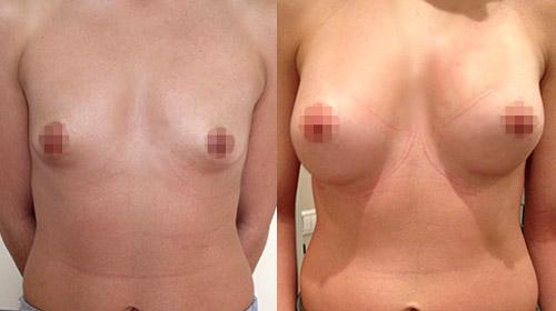 увеличение груди, хирург Крысин Д.В.
