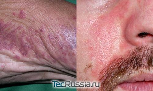 фиолетовые сосудистые пятна на ноге и красные на лице