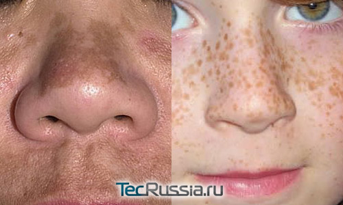хлоазма и веснушки – пигментные пятна на лице