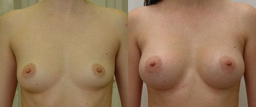 эндоскопическая пластика груди, хирург Валерий Якимец – фото до и после операции