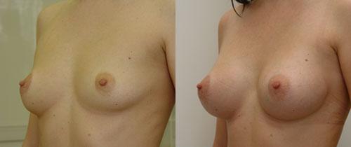 до и после эндоскопической пластики груди