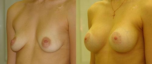 Птоз с увеличением груди, хирург В.Якимец – фото до и после операции