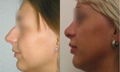 Александр Жуков, фото до и после ринопластики