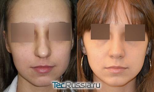 Коррекция носа лазер