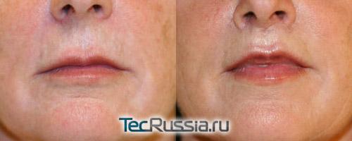 хирургическая подтяжка и увеличение губ – фото до и после