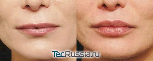 фото до и после увеличения губ собственным жиром (липофилинг)