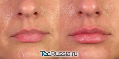 Увеличение губ Ювидермом – фото до и после