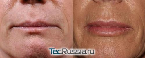 фото до и после увеличения губ силиконовыми имплантами