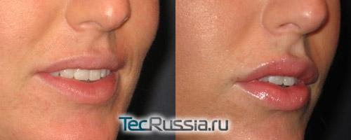 до и после контурной пластики губ
