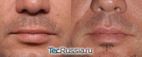 до и после пластической операции по увеличению губ