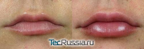 результат установки губных имплантов