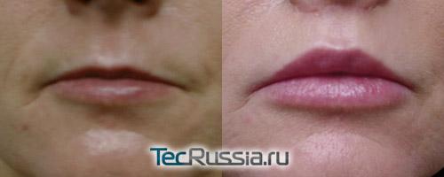 результаты липофилинга губ