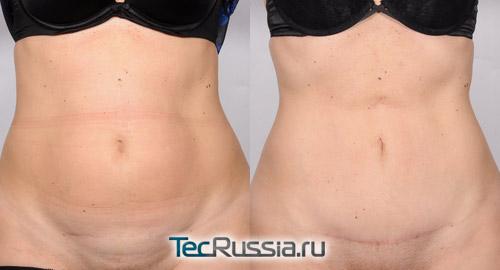 фото до и после мини-пластики живота, пациентка 3, вид спереди