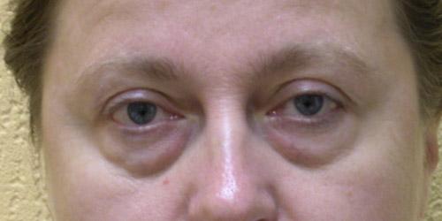 Фото до блефаропластики, пациентка 2, хирург Якимец В.Г.