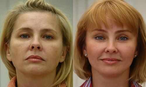 Тотальный лифтинг лица, фото до и после, хирург В.Г. Якимец