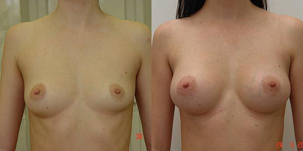 Увеличение груди фото до и после, хирург В.Г. Якимец