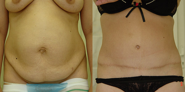 Абдоминопластика, хирург Т.А. Иванченкова, фото до и после